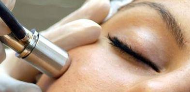 mikrodermabrazja opole, wygładzanie skóry opole, zmarszczki opole, blizny potrądzikowe, oczyszczanie skóry opole,